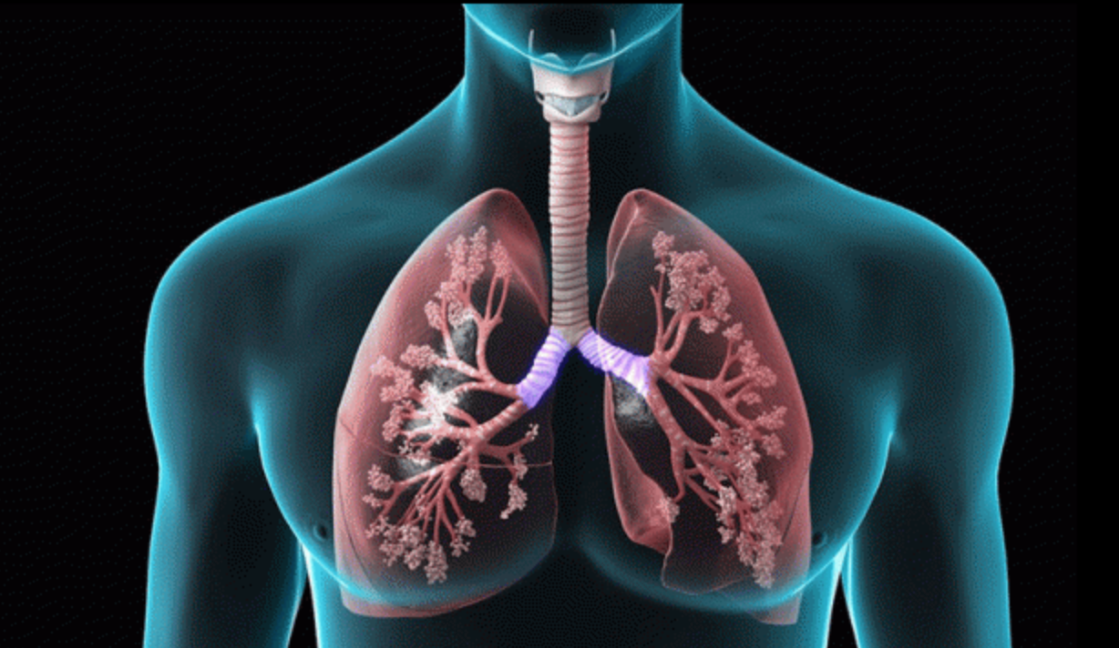 COPD lung image